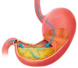 organ lambung manusia - eskayvie indonesia